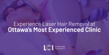 Experience Laser Hair Removal at Ottawa's Most Experienced Clinic
