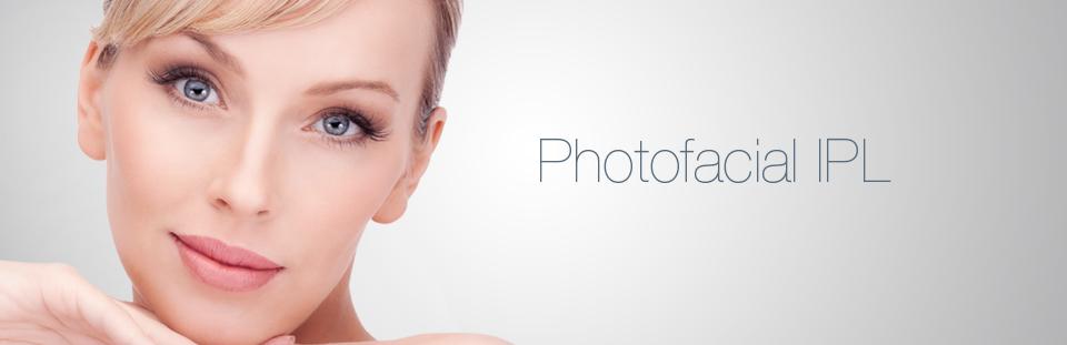 IPL Photofacial LCI Ottawa Laser Clinic